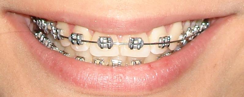 Odont logo en bogot ver nica rodriguez for W de porter ortodoncia