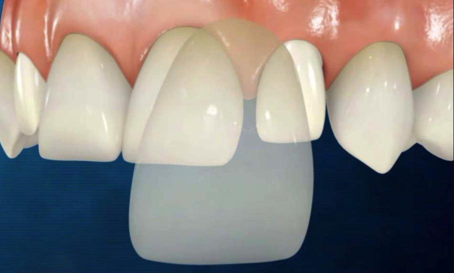 desgastar dientes carillas dentales