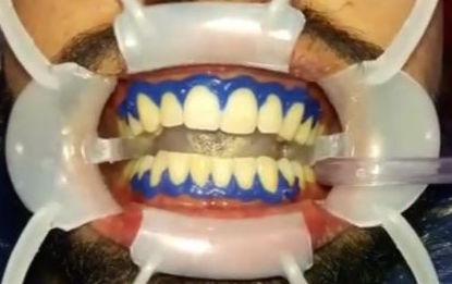 Abre boca y barrera gingival