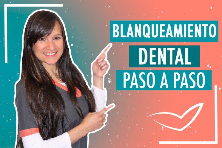 Blanqueamiento Dental paso a paso