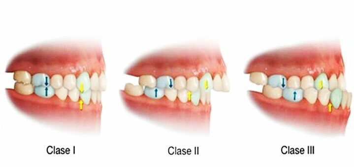 maloclusion dental