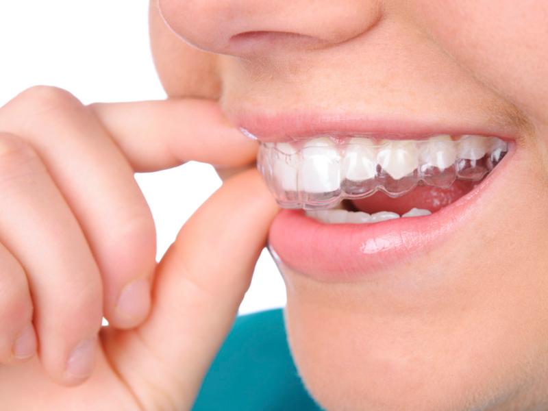 ortodoncia invisible precio